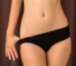 Tummy Tuck (Abdominoplasty) after Pregnancy