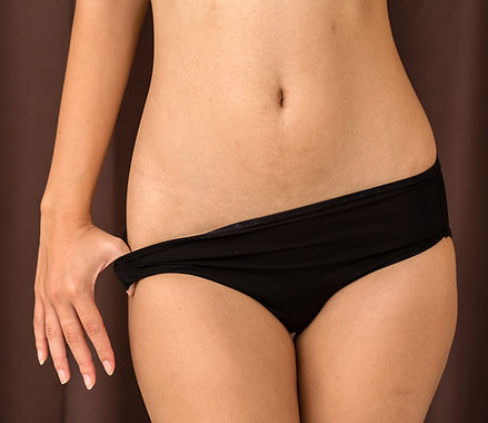 Tummy Tuck (Abdominoplasty) after Pregnancy