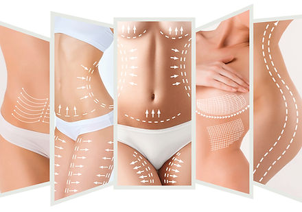 Body Contouring at Canadian Plastic Surgery Centre