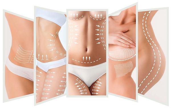 Liposuction at Canadian Plastic Surgery Centre