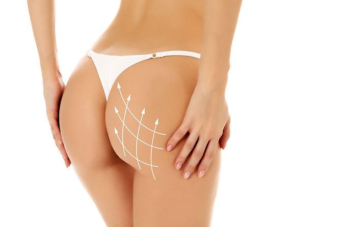 Brazilian Butt Lift at Canadian Plastic Surgery Centre
