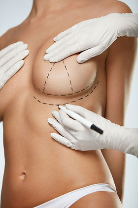 Breast Reduction - Post-Operative Instruction at the Canadian Plastic Surgery Centre