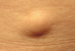 Lipoma at Canadian Plastic Surgery Centre