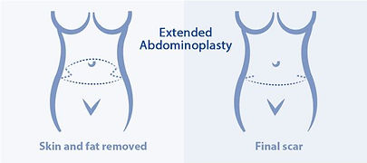 Extended abdominoplasty at Canadian Plastic Surgery Centre