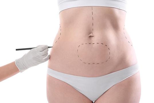 Panniculectomy Procedural Details