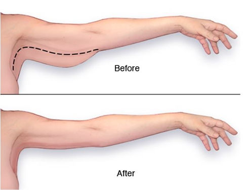 Before and After of Brachioplasty