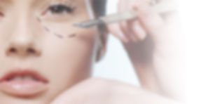 Blepharoplasty at Canadian Plastic Surgery Centre