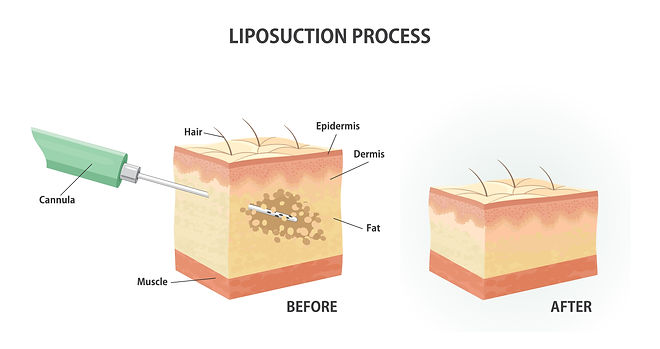 Liposuction at Canadian Plastic Surgery Centre