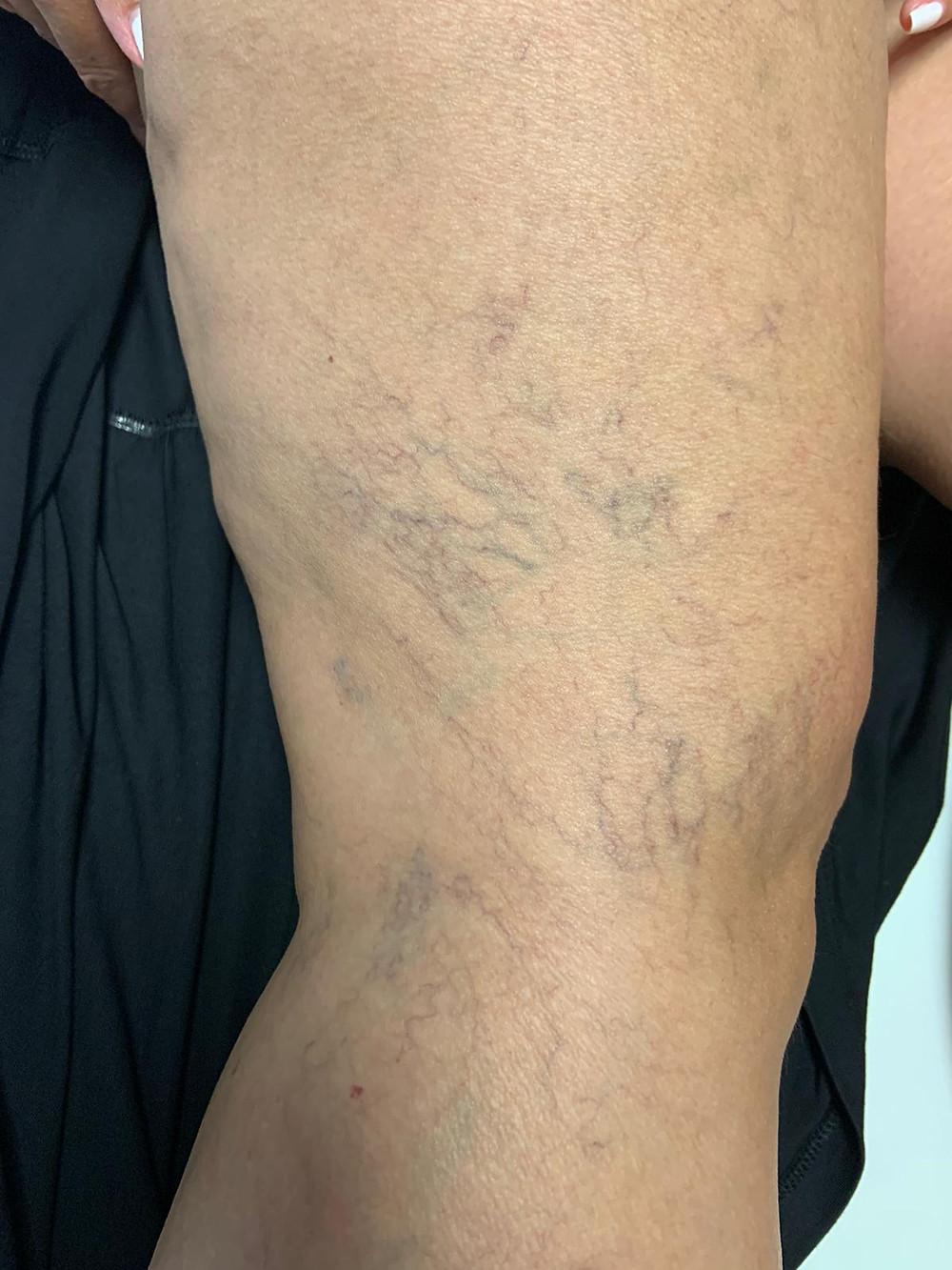 Imagen de pierna con venas vasculares