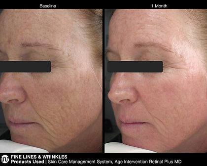 jan-marini-before-after-woman-side-view-