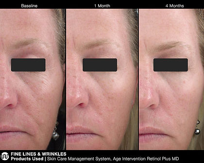 jan-marini-before-after-woman-over-time-