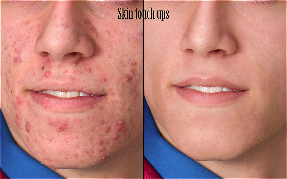 Skin-touch-ups-web.jpg