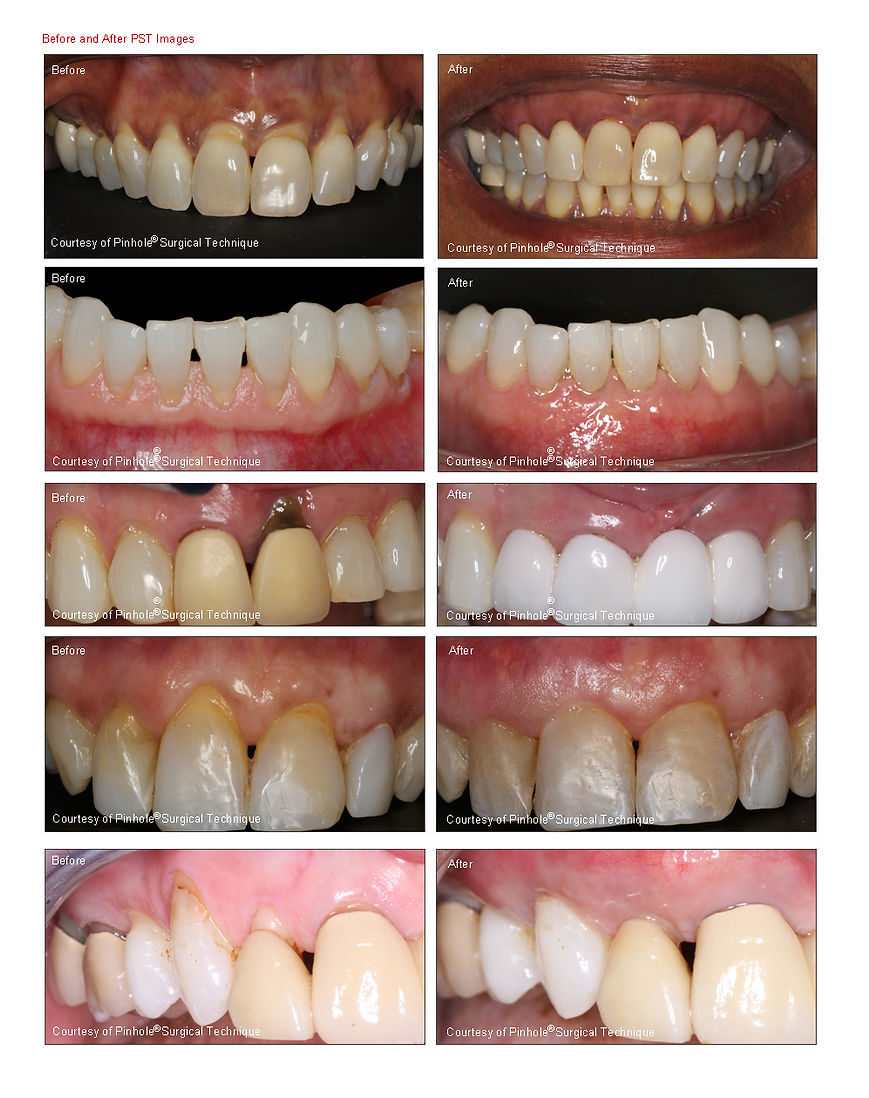 chestermere pinhole gum recession - before and after