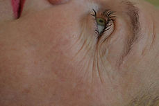 BTL_Exilis_Ultra_PIC_002-Before-face-fem