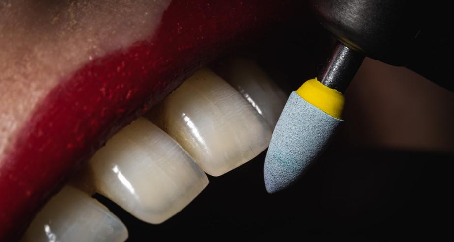 Toothorial-Macro-00073.jpg
