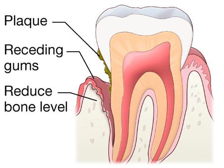 Μάθετε για την νέα μέθοδο καθαρισμού δοντιών