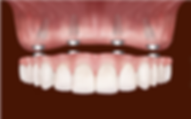 Εμφυτεύματα δοντιών Αθήνα