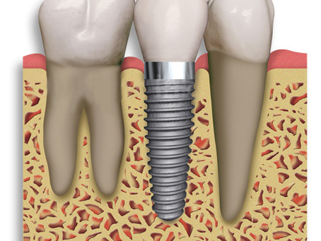 Οδοντικά Εμφυτεύματα - Όλα όσα πρέπει να γνωρίζετε