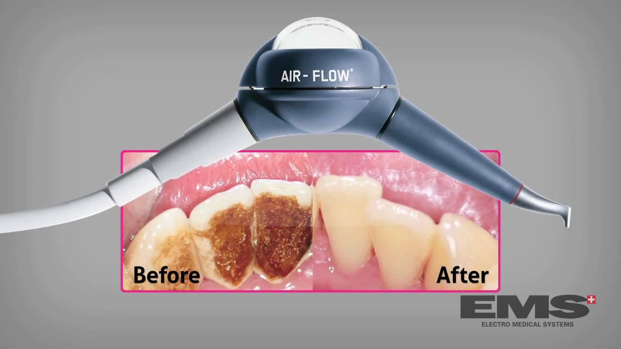 Καθαρισμός δοντιών - Teeth Cleaning