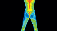 Thermography vs. Mammography - which is safest?