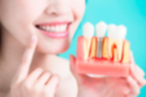 servicio-implantes-dentales.jpg