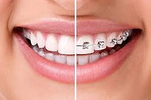 invisalign compared to metal braces.jpg