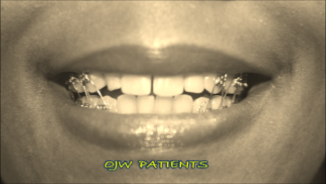 Stupendous Ojwforweightcontrol Orthodontic Jaw Wiring No Surgery Or Meds Home Wiring 101 Swasaxxcnl