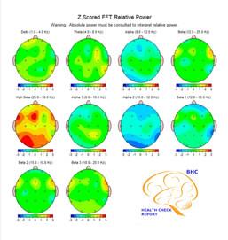 Análise das várias áreas do seu cérebro