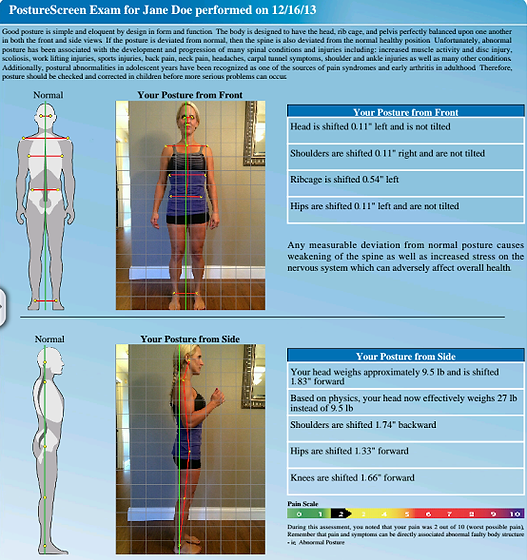 Dallas Chiropractor Posture Screen