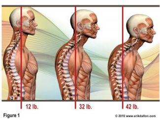 Dallas Chiropractor Posture