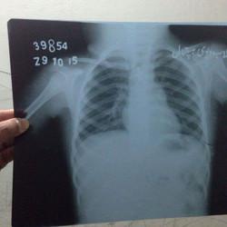 Muskan's X-ray