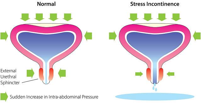 urinary incontinence kannur hospital.jpg