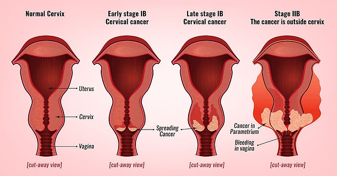 gynaecologist cancer specialist kannur.j