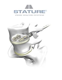 Stature with logo
