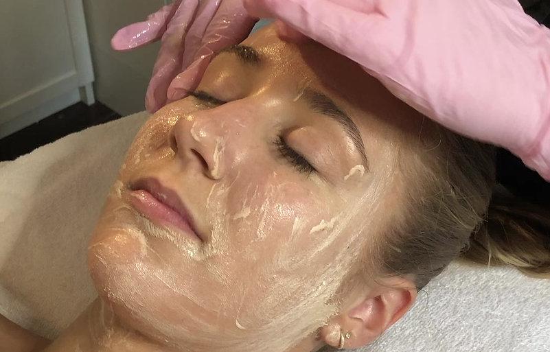 Oslo Hud og Laserklinikk - Zo Skin Health Stimulation Peel