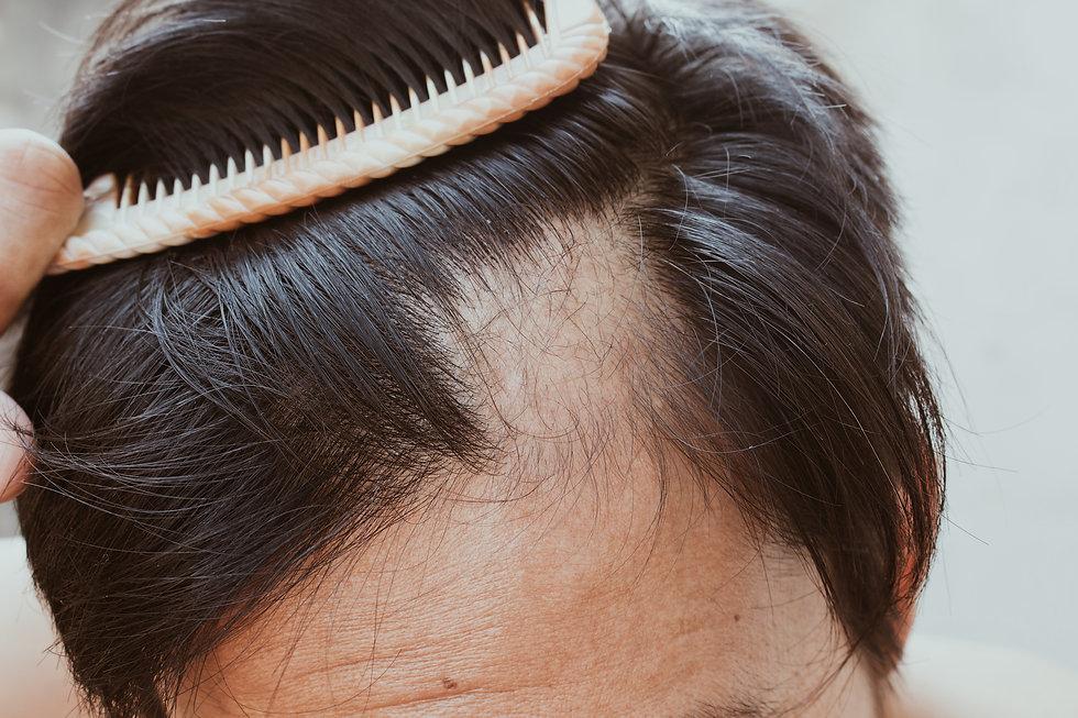 Oslo_Hud_og_Laserklinikk_Hairloss_Hartap