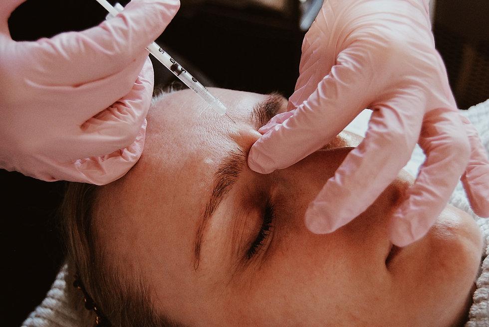Oslo Hud og Laserklinikk - Botox Rynkebe