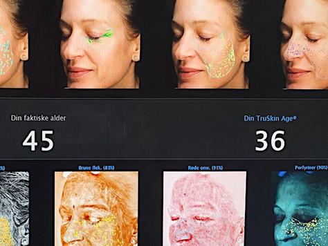 """Les hvordan vår sykepleier Anne har en """"hud-alder"""" på 36 isteden for sin faktiske alder på 45"""