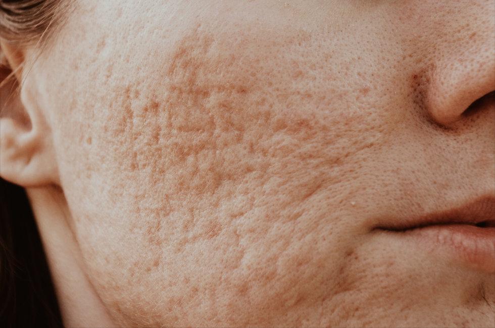 Oslo Hud og Laserklinikk - Hudproblemer