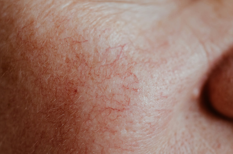 Sprengte blodkar _ Vascular skin problem