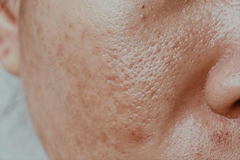 Oslo Hud og Laserklinikk - Hudproblem -