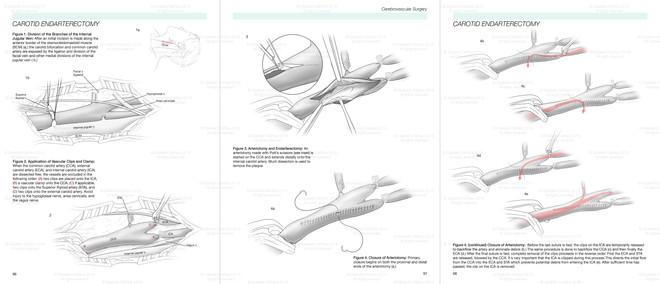 Full Layout Carotid Endarterectomy