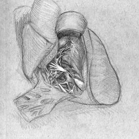 Cadeveric Heart
