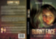 Annette Swann Burnt Face