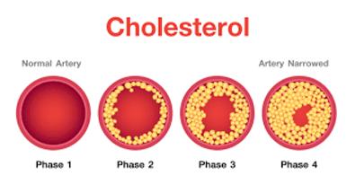 cholestrol 2.png