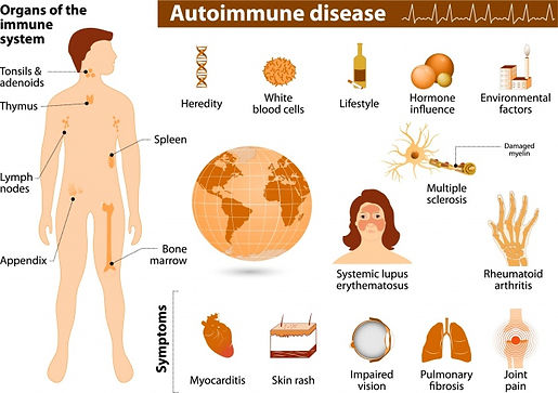 the organs effected by autoimmun diseases, symptoms of autoimmune diseases that can be managed with Homeopathic treatment and lifestyle changes in orde to attain the natural balance,