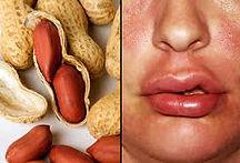 allergy 6.jpg