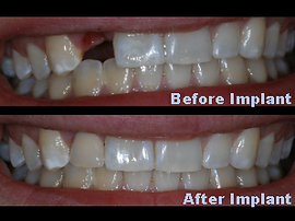 Before & After Implants