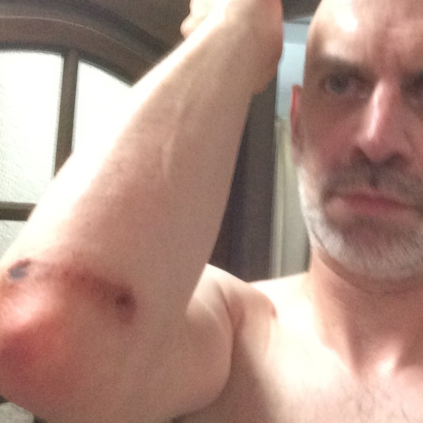 chipped/grazed elbow