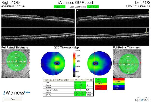 Retina Line Scan Normal